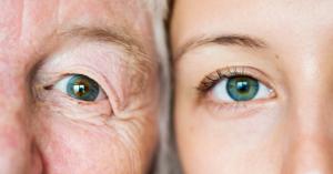 Doenças raras e saúde ocular